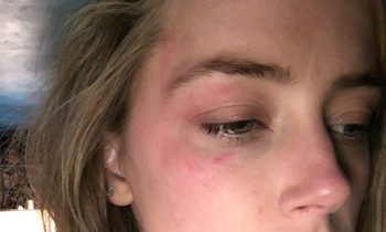 Amber Heard Says Johnny Depp Beat Her, Submits This Photo For Restraining Order