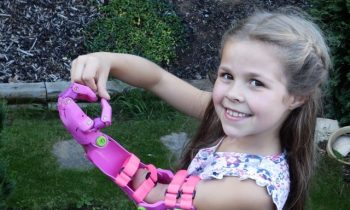 Inventor Makes Cool Prosthetic Limbs For Kids In His Garden Shed For Free